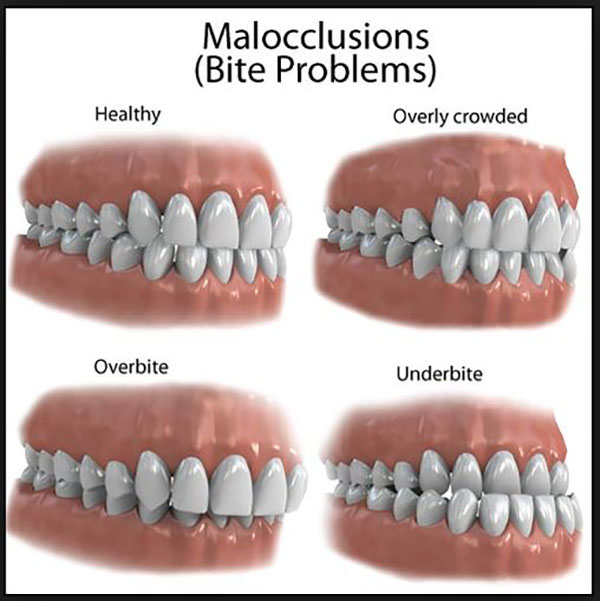 Braces Misaligned Teeth Tender Care Dental Dentist In