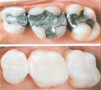 Tooth fillings dental fillings tender care dental clinic in kenya tooth fillingstooth colored fillings tender care dental dentsist in nairobi kenya solutioingenieria Image collections