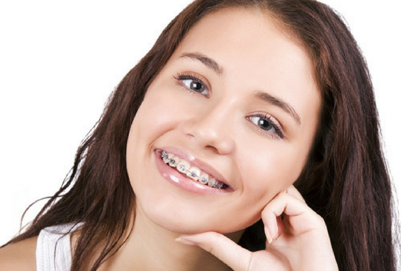 How much do teeth braces cost in kenya